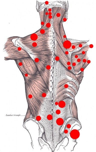 muskelknutor i ländryggen